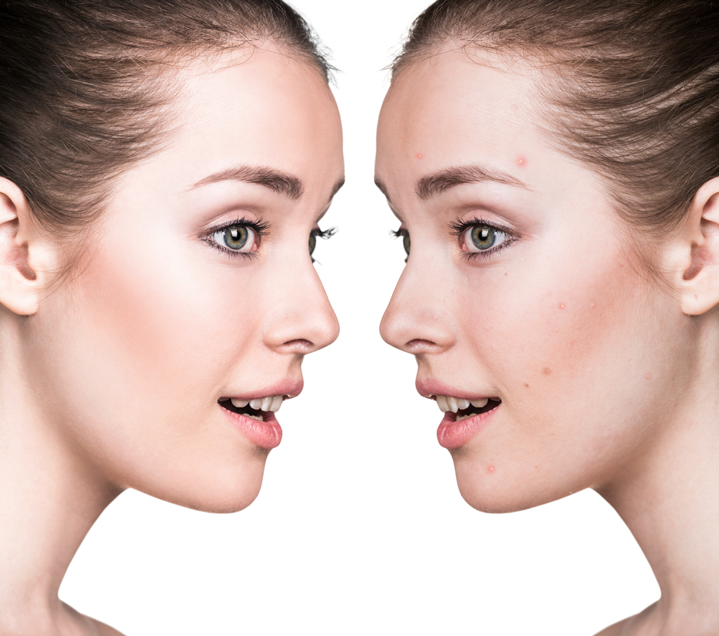 two woman facing each other | CWC Medical Spa Treat Acne and Acne Scarring before Going Back To School in Charter Township of Clinton and Metro Detroit, Michigan